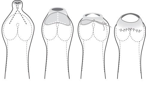 Prepucioplastia Y-V