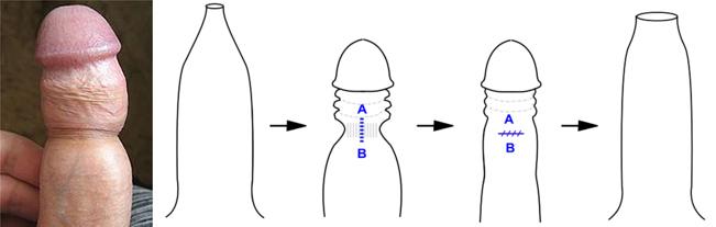 Prepucioplastia