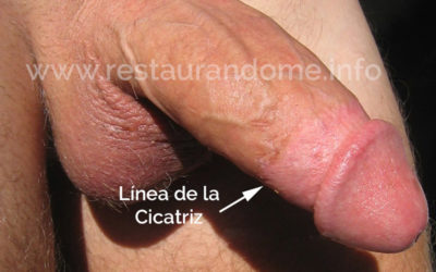 La cicatriz de la circuncisión se localiza en el cambio de textura de la piel.
