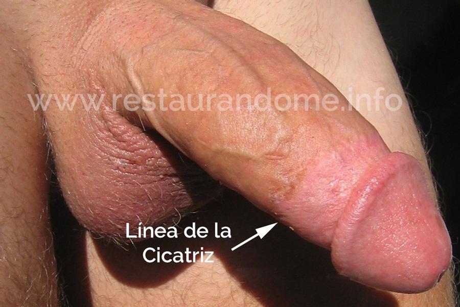 Como medir el pene y la piel interna. Método de Andre