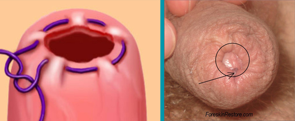 Cirugias de retoque. Sutura en bolso