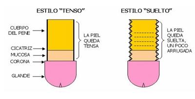 tenso_suelto_circuncision