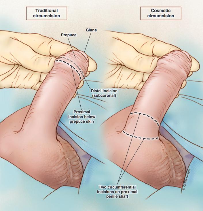 Circuncisión cosmética: 1. Procedimiento preoperatorio